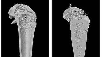 Knochenkrankheit, marmorknochenkrankheit, osteopetrose