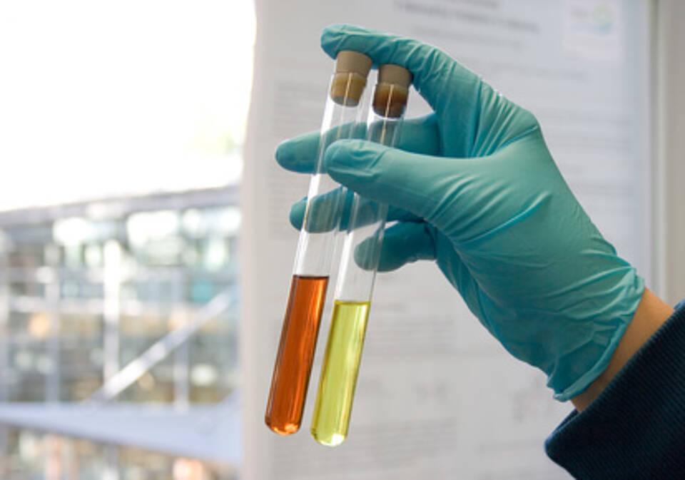Blut im Urin, Blasenkrebs, Blasenkarzinom
