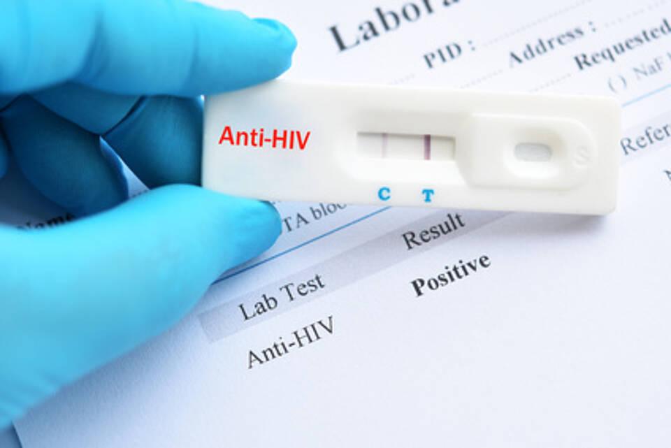 aidstest, hiv, hiv-test, bluttest