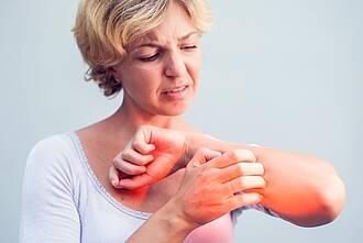 Frau kratzt sich juckenden Unterarm