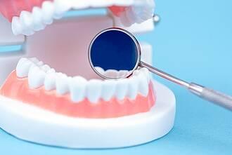 Gebiss (Modell) mit Zahnarztspiegel - strahlend weiße Zähne