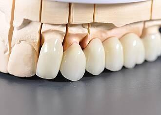 Stammzellforschung in der Zahnmedizin