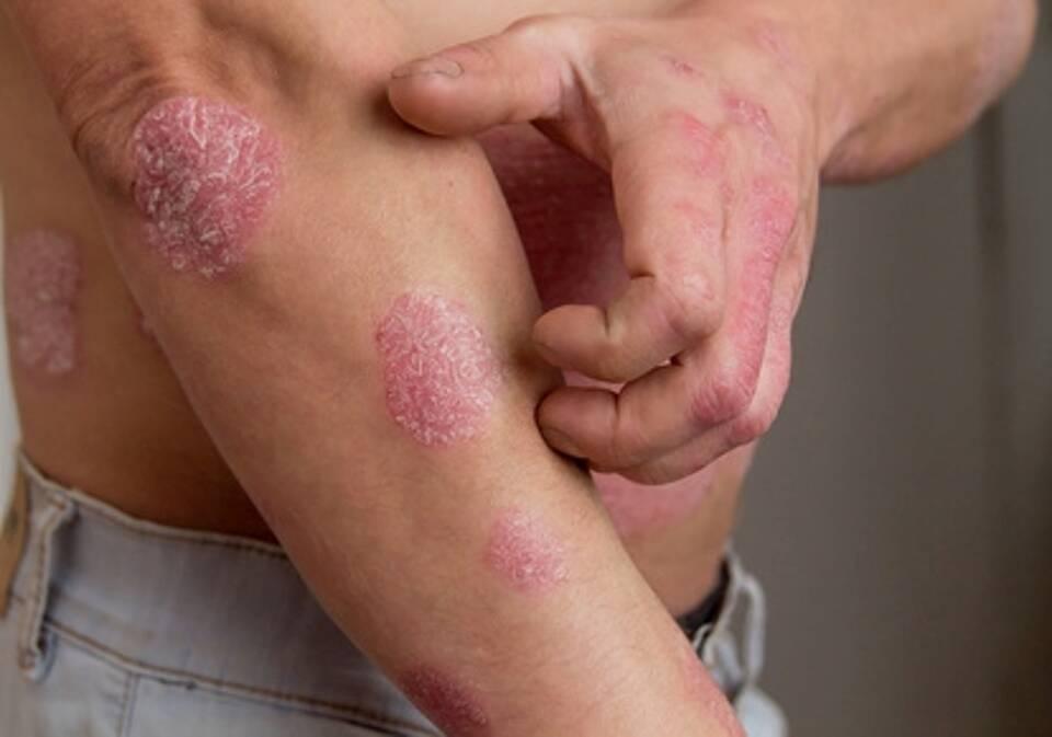 Mann kratzt sich an Schuppenflechte am Oberarm