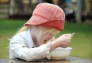 Nahrungsmittelallergie bei Kindern: Wissenschaftler kennen jetzt die auslösenden Gene