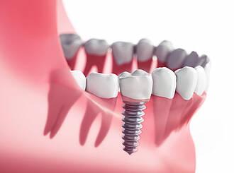 zahnimplantat, künstliche zahnwurzel, zahnersatz