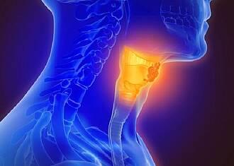 Mund-Rachen-Krebs