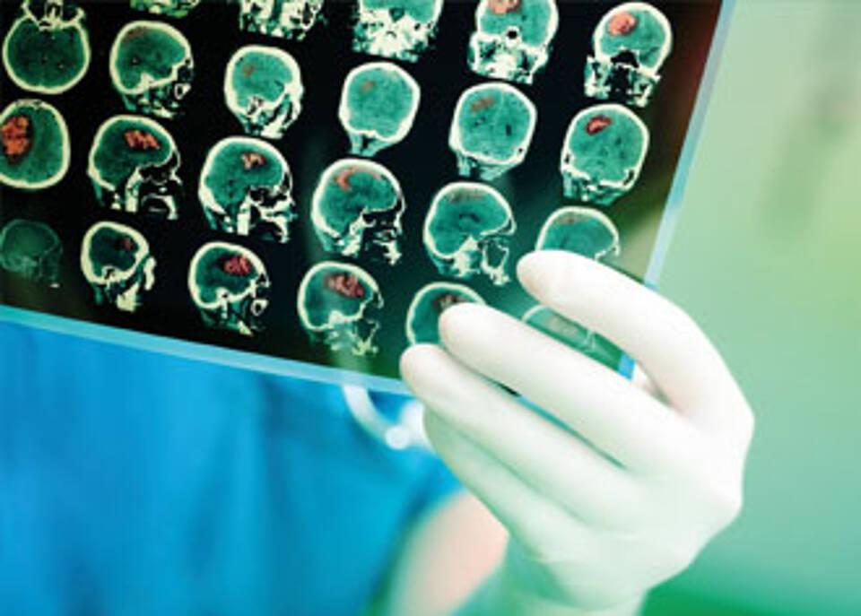 Glioblastom, neue Behandlungsmöglichkeiten