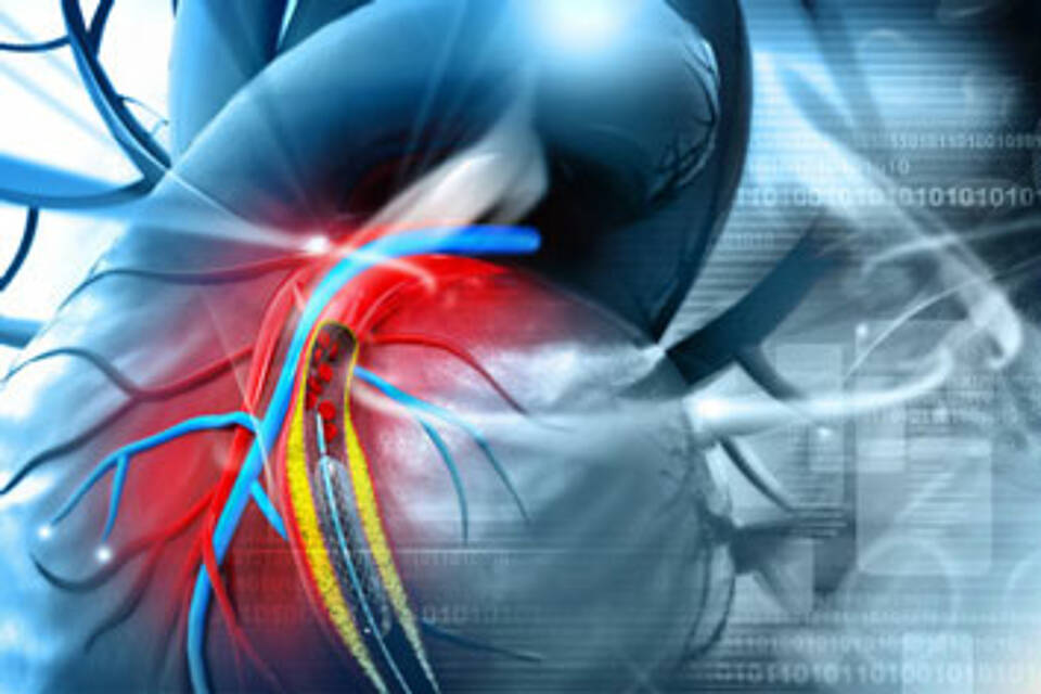 Lungenembolie entsteht durch Thrombose