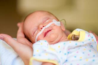 Frühchen, Frühgeborenen, HFNC, CPAP, DKG, BSG, Atmung, Beatmung