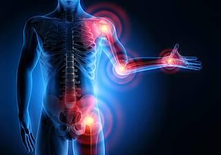 Rheuma - Grafik Skelett mit roten Schmerzzonen.