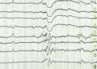 Neues Epilepsie-Zentrum am Vivantes Humboldt-Klinikum