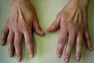 Rheumatoide Arthritis - Einflussfaktoren untersuch die Nationale Kohorte
