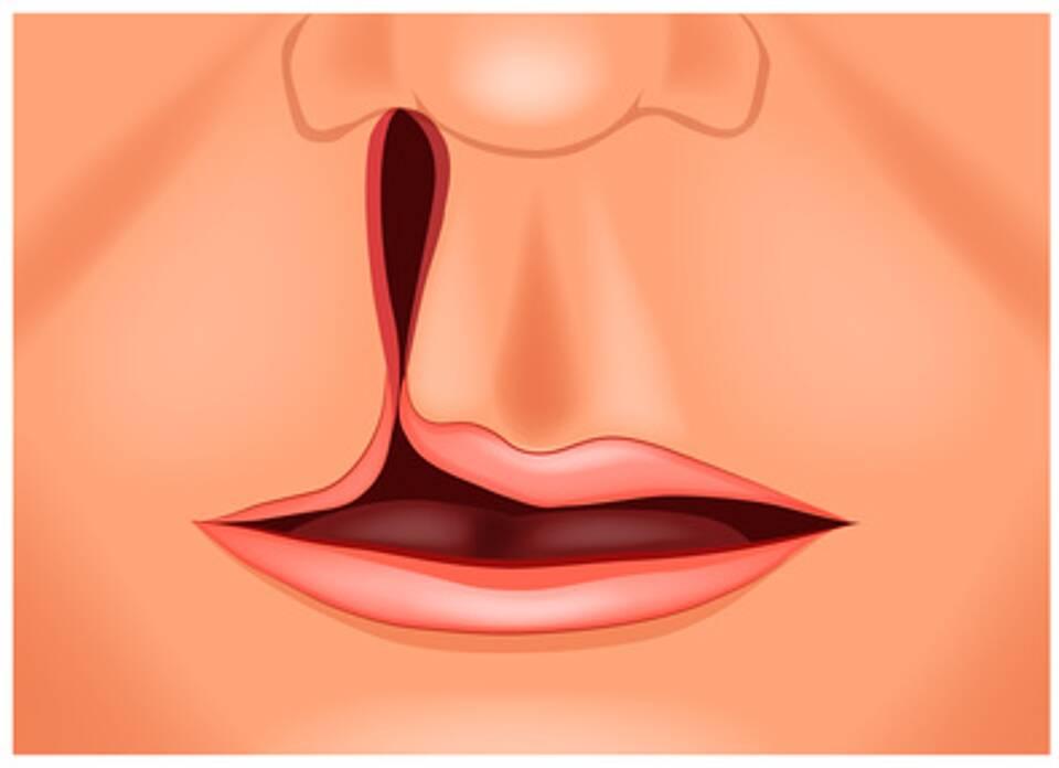 Lippen-Kiefer-Gaumenspalte, NAM, IQWiG
