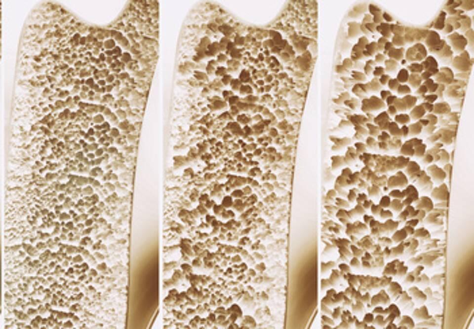 Probiotika gegen Osteoporose