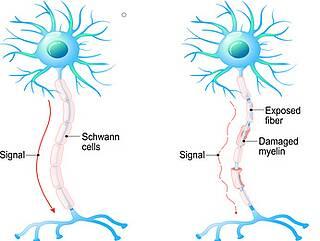 Multiple Sklerose, Welt-MS-Tag, unsichtbare Symptome