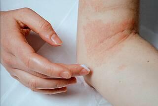 Neurodermitis: Frau cremt sich Ellenbeuge ein.