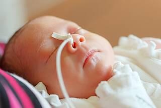Komplikationen und Sterblichkeit bei Frühgeborenen offengelegt