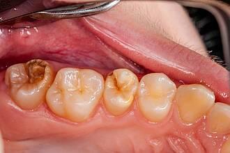 Blick in den Mund aus der Zahnarztperspektive: Hypomineralisierte Backenzähne.