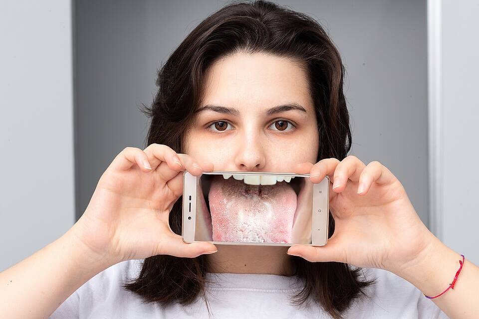 Junge Frau mit Pilzinfektion auf der Zunge.
