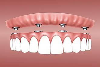 Zahn-Implantate, Kiefergelenksbeschwerden