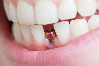 Implantatpfosten