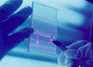 TNF-R1 mögliches Schlüsselprotein bei MS