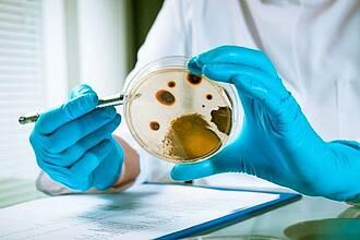 Der Tuberkulose-Erreger bildet in der Luft einen Verbund und überlebt somit länger in Aerosolen
