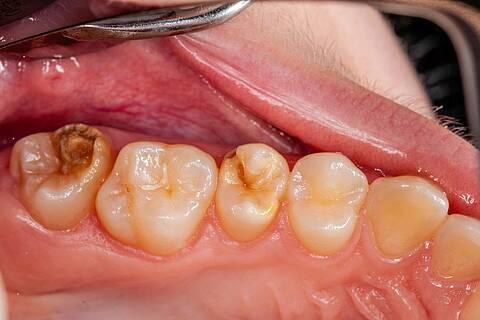 Gelb-braun verfärbte Kreidezähne bei einem Kind.