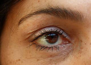 Hornhautspenden retten Augenlicht