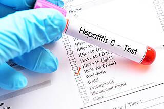 Jeder ab 35 kann sich einmal auf Hepatits B und C testen lassen