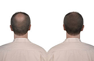 Gut gegen Haarausfall, schlecht für die Potenz: Studie bestätigt Nebenwirkungen von Finasterid und Dutasterid
