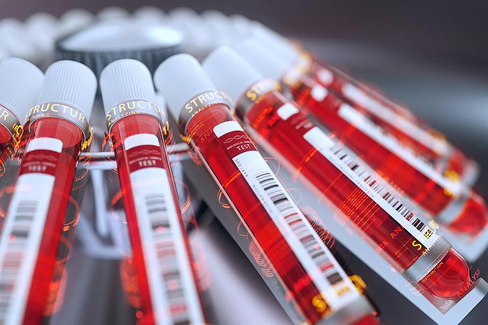 Labortests, Antikörpertests