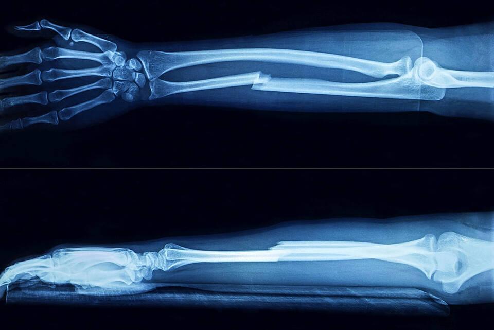 Röntgenbild Unterarmfraktur