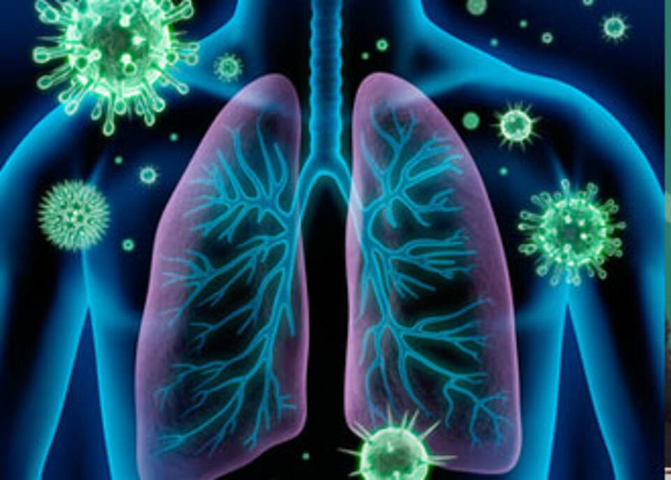 Cochrane-Analyse: Fraglicher Nutzen von Tamiflu und Relenza