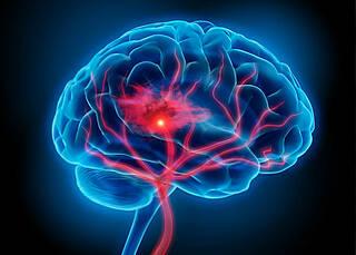 Hirntumor: Warten auf den großen Durchbruch