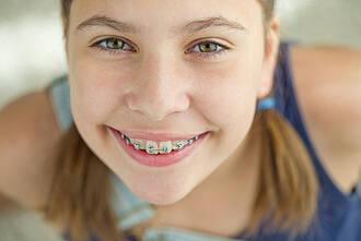 zahnspange, brackets, kieferorthopädie, kinder, zahnkorrektur