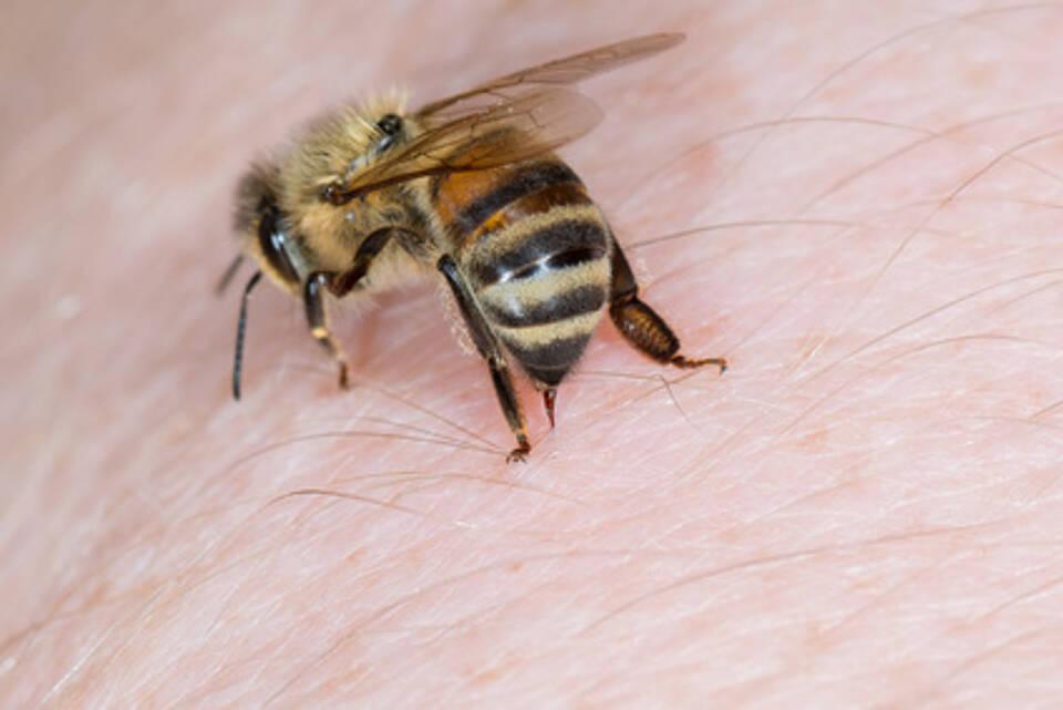 Bienenstich, Biene, Allergie, anaphylaktischer Schock