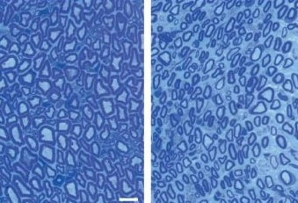 Charcot-Marie-Tooth-Erkrankung, CMT, Seltene Erkrankungen, Myelinisierung