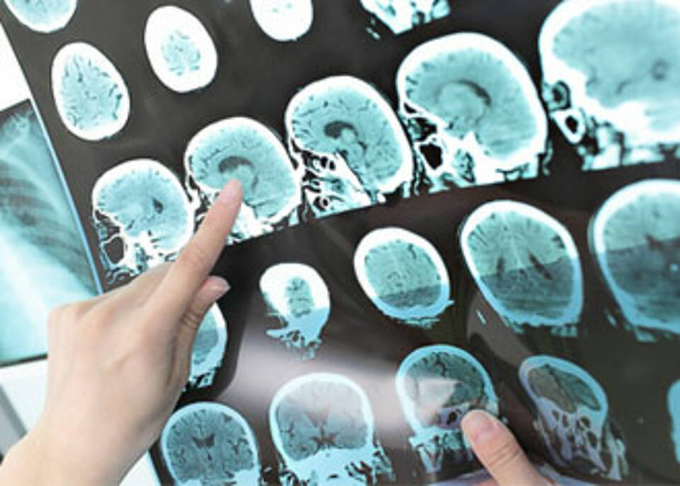 Alzheimer, Ursache