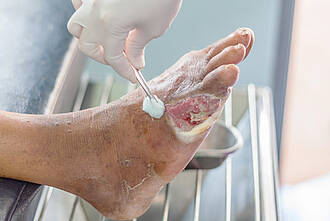 Diabetes, Diabetisches Fußsyndrom, Telemedizin
