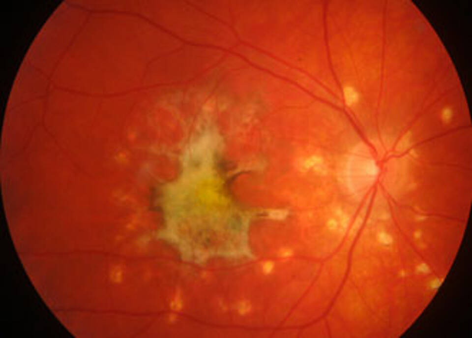 Uveitis, Augenentzündung, Register