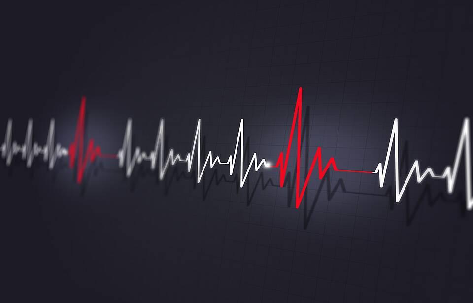 Herzrhythmusstörungen - Grafik