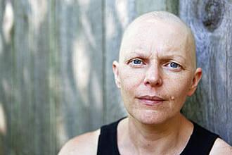 Krebs und Armut: Mediziner sprechen von einer alarmierenden Entwicklung