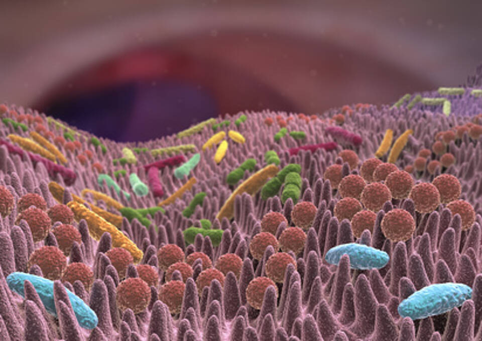 Darmkrebs, Immunsystem, Mikrobiom, Darmflora