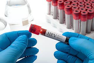 HPV, Rachenkrebs, Krebsrisiko, Antikörper