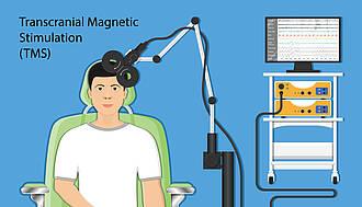 TMS, Transkranielle Magnetstimulation
