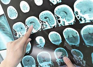 Alzheimer auslösende Tau-Proteine verbreiten sich in alternden Gehirnen schneller