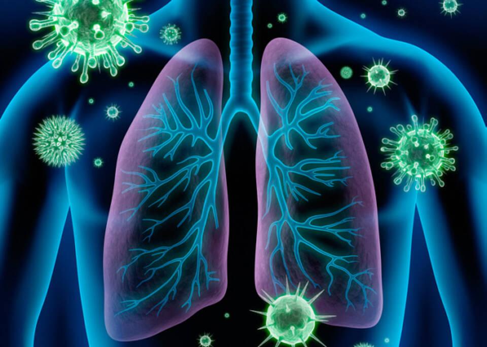 Lungenentzündung, Kortison, Heilung, Forschung