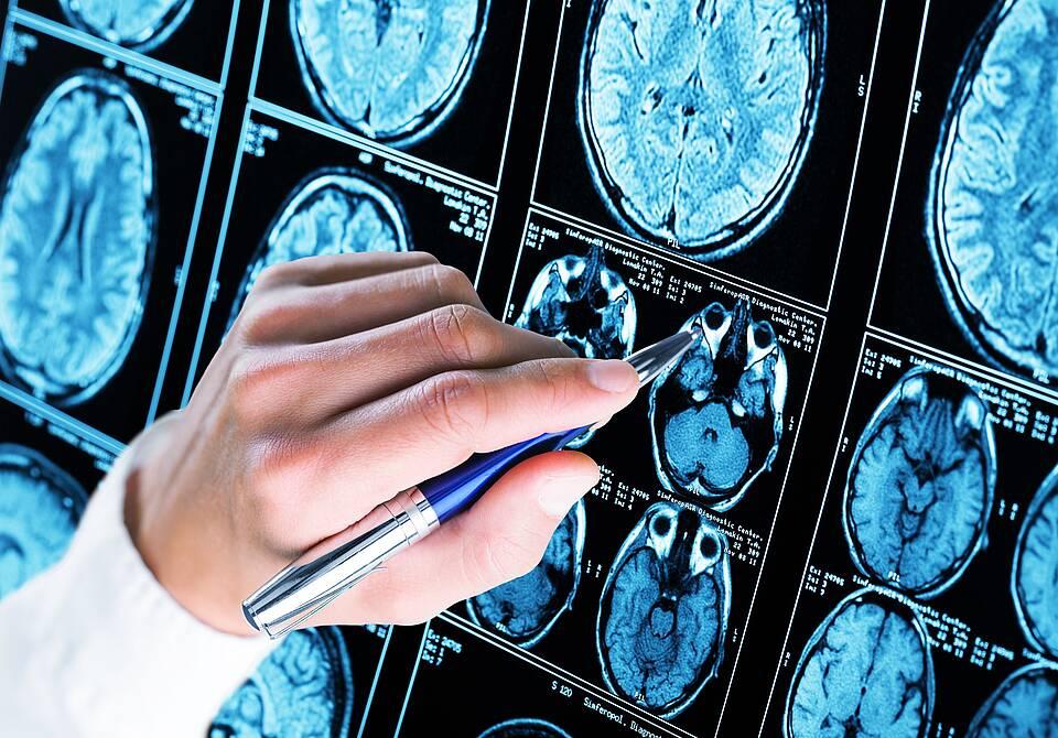 Die Ursache von Alzheimer könnte womöglich auf unsichtbare Aggregationskeime zurückzuführen sein