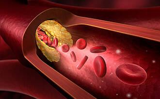 Arteriosklerose, Atherosklerose, Gefäßverkalkung, Gefäßverengung